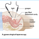 gynaecological laparoscopy